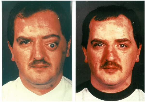 Arthur Moore after and before the accident