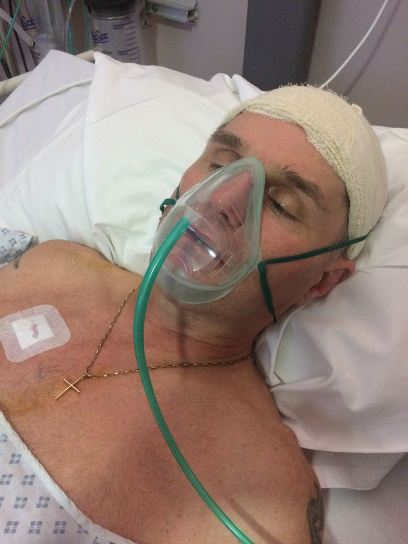 Terry after the operation that saved him after his burst brain aneurysm