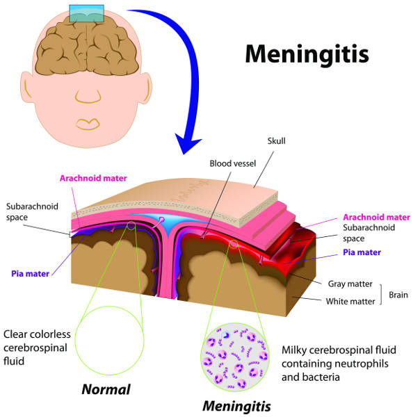 Diagram showing how meningitis affects the brain, including the meninges around the brain (copyright shutterstock_89870962)