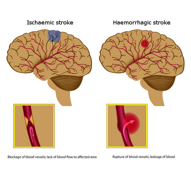 Diagram showing the types of brain (cerebral) stroke, including ischaemic and haemorrhagic stroke (copyright shutterstock_78688366)